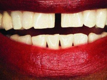 Dents Bonheur